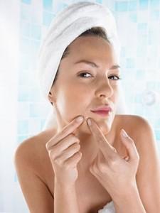 como quitar acne