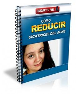 Como reducir cicatrices del acne